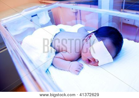 Newborn Baby Under Ultraviolet Light