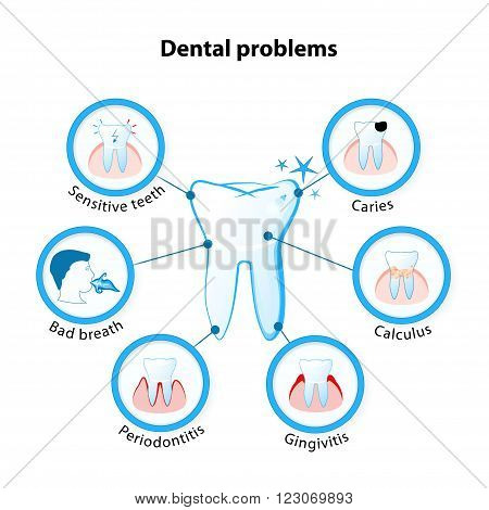 dental problem. Tooth disease: sensitive teeth caries calculus gingivitis periodontitis and bad breath