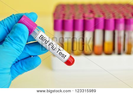 Test tube with blood sample for Bird Flu test