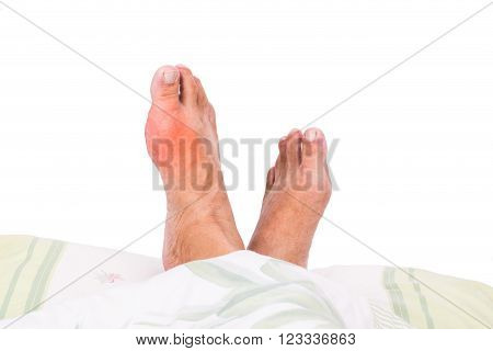 Man with right foot swollen and painful gout inflammation resting on bed.
