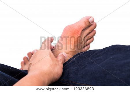 Man Embraces Foot With Painful And Swollen Gout Inflammation