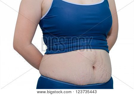 Woman in swim suit showing her stretch mark