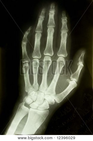 x-ray picture of the palm