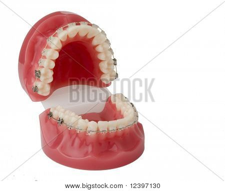 brackets  model with opened mouth
