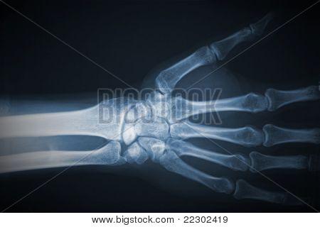 detalhe da película de raio x de mão