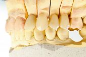 picture of emax  - Lateral view of a highly aesthetic dental bridge and crown on gypsum model - JPG