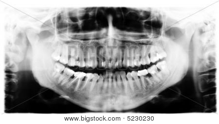 Teeth X-ray Image
