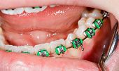 foto of overbite  - Close up photo of teeth with orthodontic braces - JPG