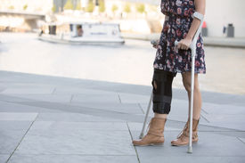 stock photo of crutch  - close up of woman in a dress walking with crutches - JPG