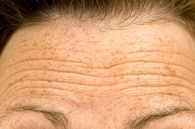 picture of eyebrows  - Close up shot of a female wrinkled forehead or raised eyebrows - JPG