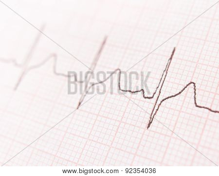 Cardiogram. Ecg Shows The Heart Beat