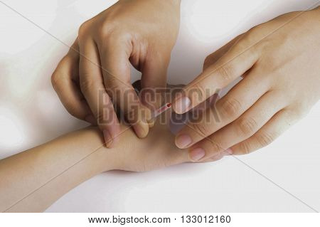 Acupuncture on the hand - direction in traditional Chinese medicine