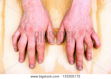 Woman's hands deformed from rheumatoid arthritis  rheumatism