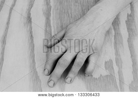 Arthritic Old Hand. Photo Black And White