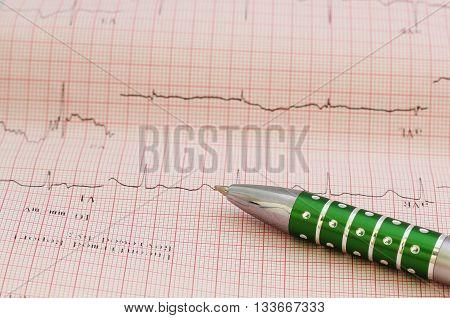 EKG - Medical electrocardiogram on grid paper, graph of heart rhythm.