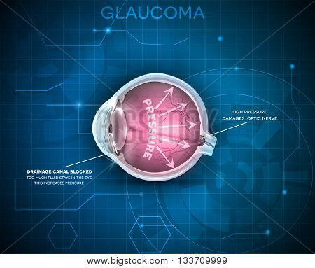 Glaucoma, Vision Disorder