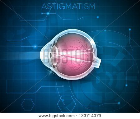 Astigmatism, Eyesight Problem