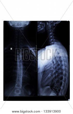 X-ray Film