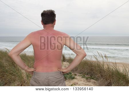 Sunburned Male Back Red Back At The Beach