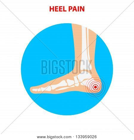 heel pain. Human ankle joint icon. Foot health care. Vector illustration.