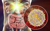 Treatment Of Hepatitis C Virus Infection, Conceptual Image, 3d Illustration Showing Destruction Of H poster