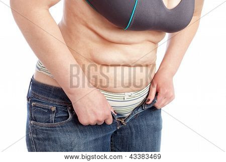 Middle-aged Woman Shows Belly With Excess Fat. On A White Background.