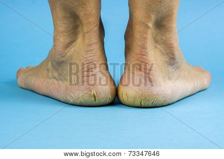 Cracked Heels On Blue Background