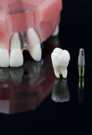 stock photo of overbite  - Real Human Wisdom tooth Implant Dental and Plastic teeth model - JPG