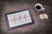 stock photo of electrocardiogram  - Electrocardiogram on a tablet  - JPG