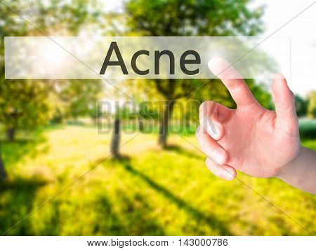 Acne - Hand Pressing A Button On Blurred Background Concept On Visual Screen.