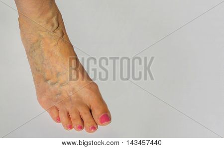The varicose veins on a leg of old woman on gray