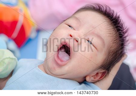 Little asian newborn with candidiasis on tongue