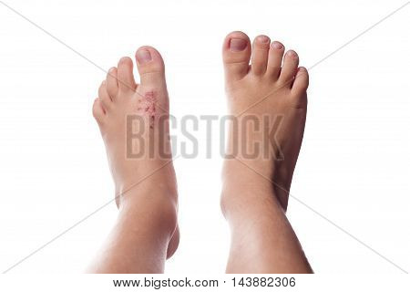 Eczema, Atopic Dermatitis. Close Up Of Eczema On The Skin Of The Kid's Foot