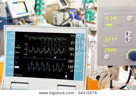 cardiogram  with intra-aortic balloon counterpulsation and extracorporeal membrane oxygenation (ECMO)  in ICU