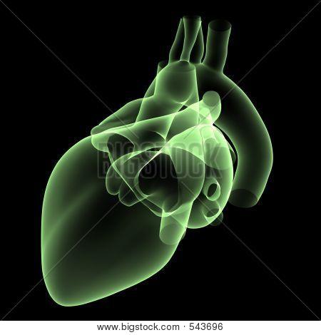 Heart X-ray 2