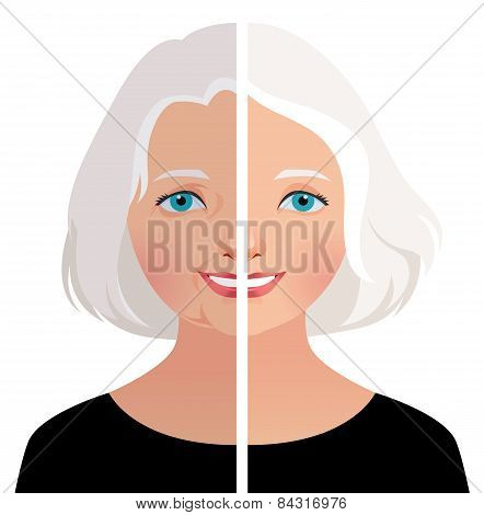 Mature Woman Before And After Cosmetic Operation
