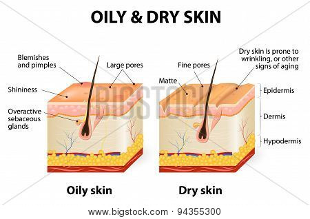 Oily & Dry Skin