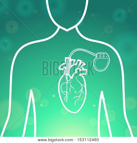 Heart with pacemaker medical wallpaper, vector illustration.Human Heart logo and Heart Pacemaker lifesaver on green blur pattern human silhouette. Medical wallpaper for medical site, cardiology clinic