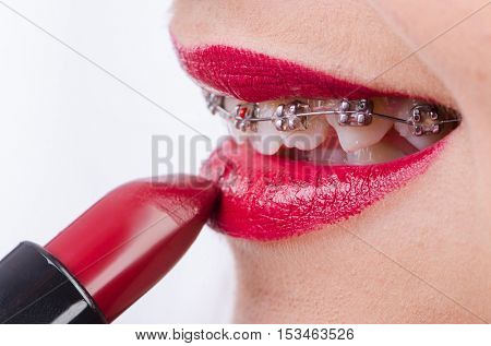 Mouth with brackets and red lipstick