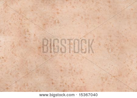 Freckled human skin. Texture or background.