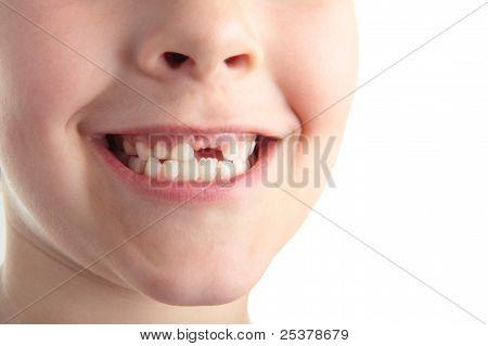 Baby Teeth.