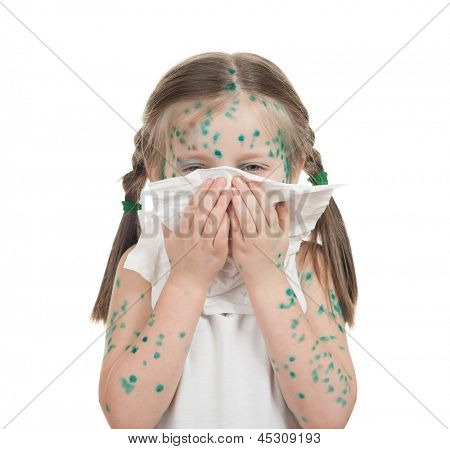 sick child. chickenpox. isolated