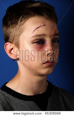Scarred beaten up kid
