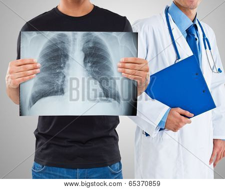 Man holding a radiography of his lungs
