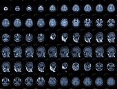stock photo of angiogram  - Brain and head MRI or CT images - JPG