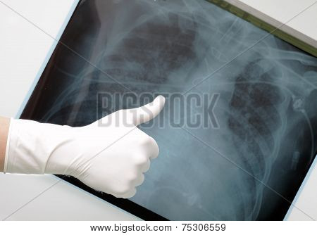 Hand With Thumb Up On The Background Of An X-ray Of The Lungs.