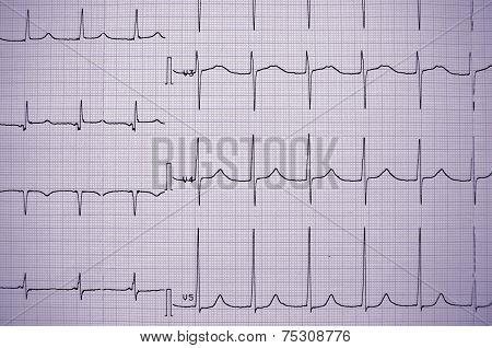 ECG Healthy Person. Professional Information.
