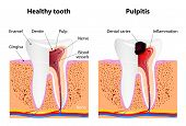 stock photo of gingivitis  - Pulpitis and Healthy tooth - JPG