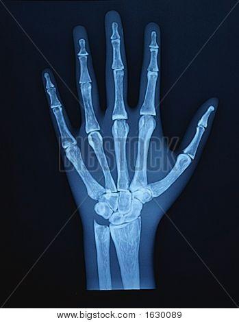 RTG ruky