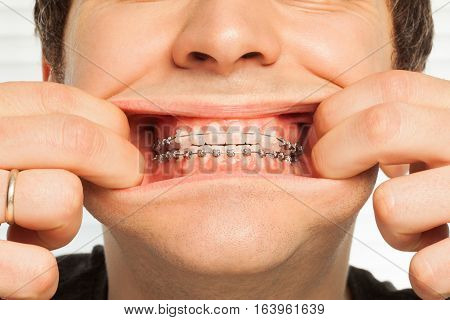 Close-up picture of man's wide opened mouth showing dental braces